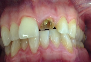 How Much Is A Crown >> Same Day Dental Crowns Using Cerec Dentist Cape Town